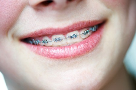 The smart Trick of How Do Braces Work That Nobody is Talking About