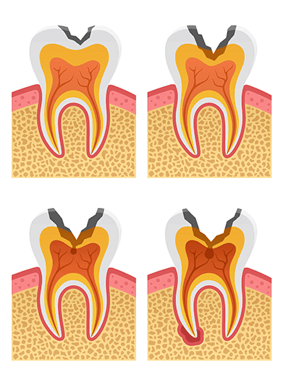 cavity-forming