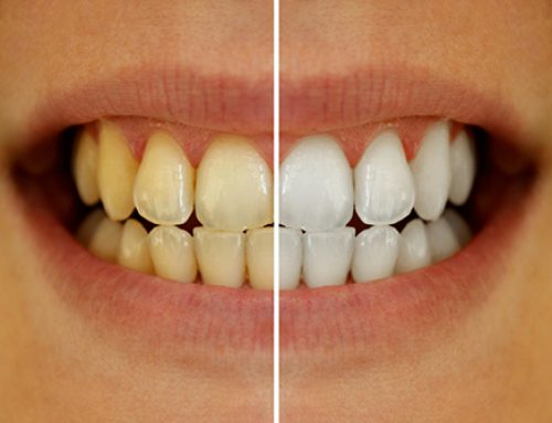 What are the Causes of Stained Teeth?