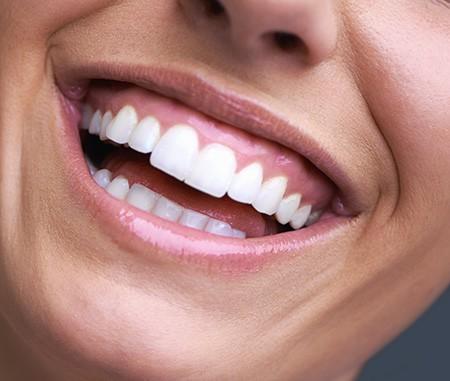 How to Fix a Gummy Smile   Dental net