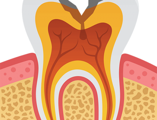 Cavities – Get to Know Your Oral Health Foe
