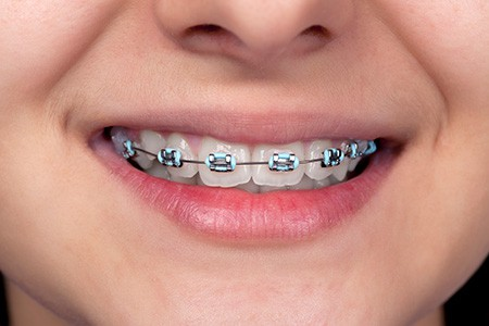 braces-what-you-need-to-know