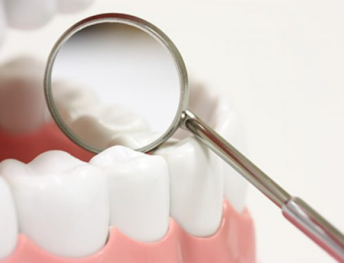 Dental Sealants Explained