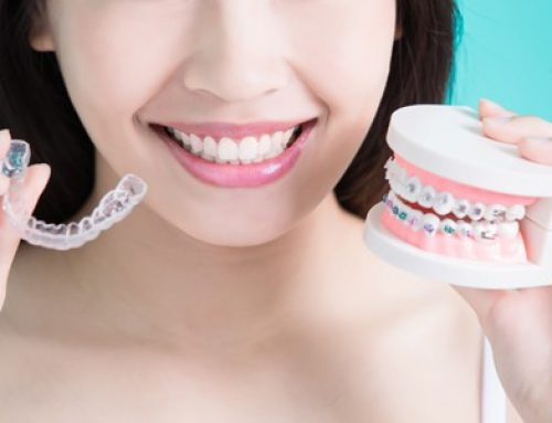 What You Need to Know About Clear Aligners vs. Metal Braces
